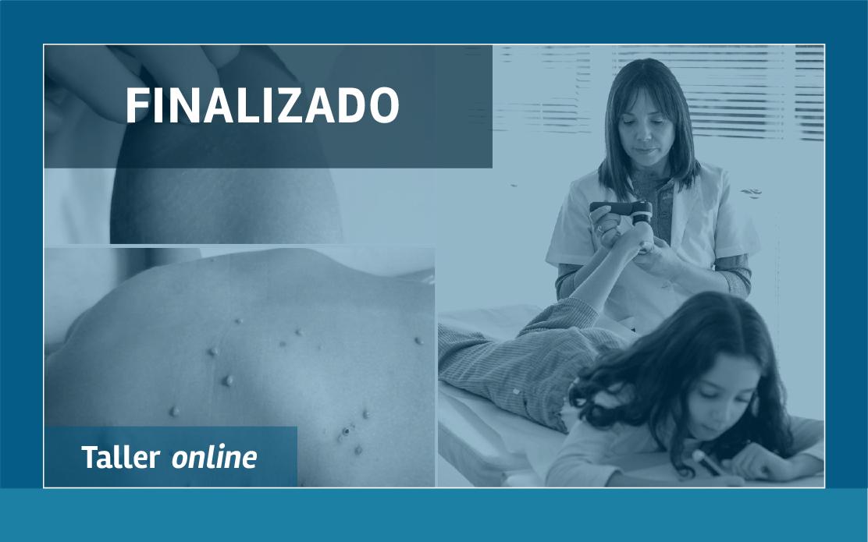 Dermatología pediátrica: consultas frecuentes